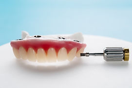 Closeup/ Dental implants supported overd