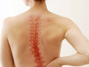 Scoliosis Doctor Los Angeles