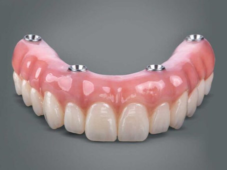 FINDING THE RIGHT DENTURE FIT
