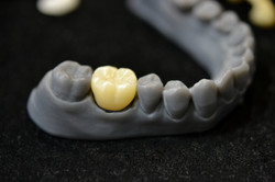 South Africa Makes 3D Printing Dental