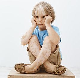Vitiligo bei Kindern3.jpg