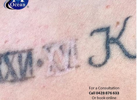 A Plus Ocean Tattoo Removal Works.