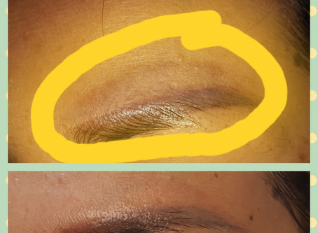 Horrible Eyebrows Can Be Corrected