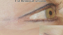 The best Tattoo Removal Solution available