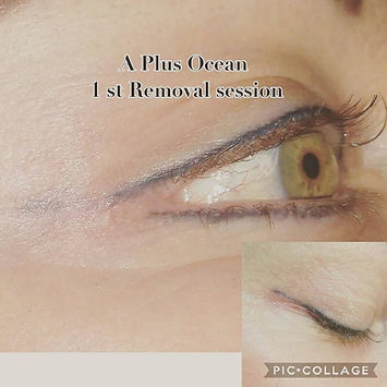 Brow Removal and Correction by Carol Dinis, using A Plus Ocean