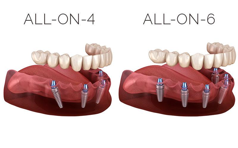 All-on-4,6,8  Dental Implants