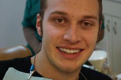 Dental Crowns - DDS Jorge Sanchez (5)