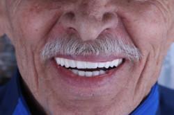 Dental Crowns - DDS Jorge Sanchez (9)