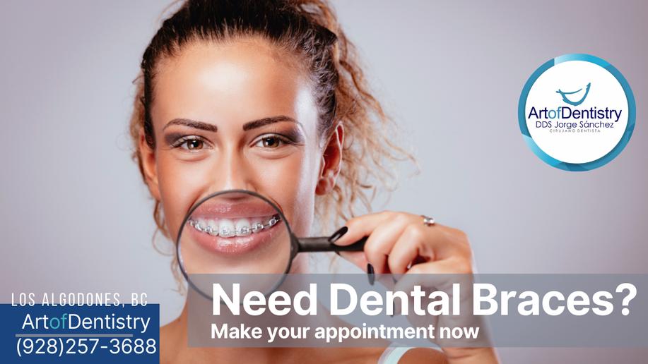 Start Now Dental Braces- Art of Dentistr