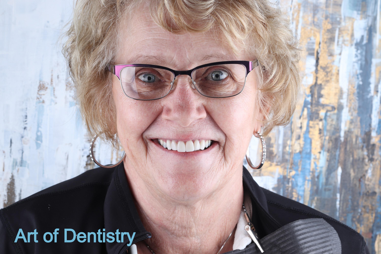 Dental Crowns - algodones - Art of Denti