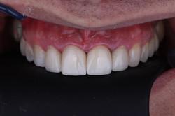 dentist-in-algodones-jorge-sanchez