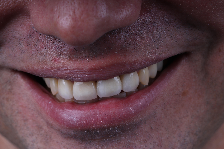 Aaron Dental Implant - Art of Dentistry.