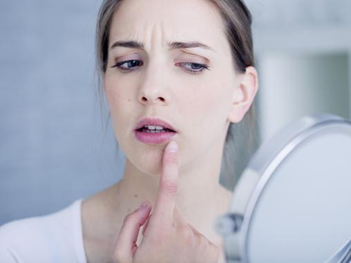 Saiba o que é Herpes labial
