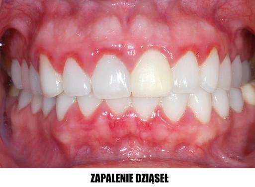 Chcesz cieszyć się własnym uśmiechem przez długie lata?  Uważaj na parodontozę!