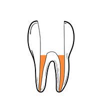 tooth4.jpg