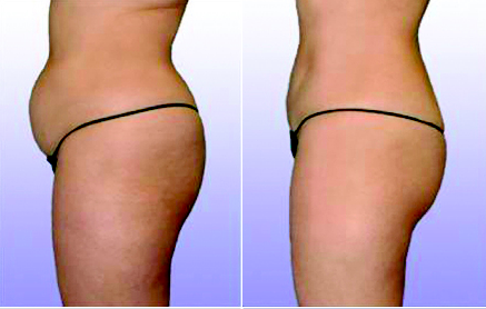 Abdomen Before and After