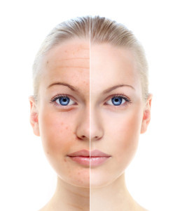 TIRED OF UNEVEN SKIN TONE?