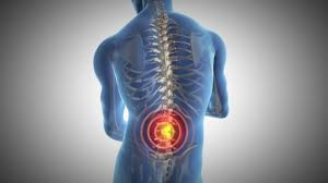 Back pain, chronic pain, rheumatoid arthritis