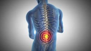 4 Ways Naturopathic Medicine Can Help Ease Rheumatoid Arthritis Pain
