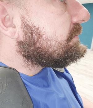 Beard transformation for the non razor type