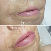 Dermopigmentation réparatrice Bouche 3D