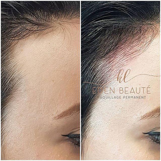 1ere Séance de Dermopigmentation Réparat