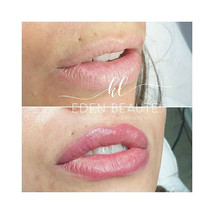 Maquillage permanent Lèvre beausset marseille toulon embelliderm