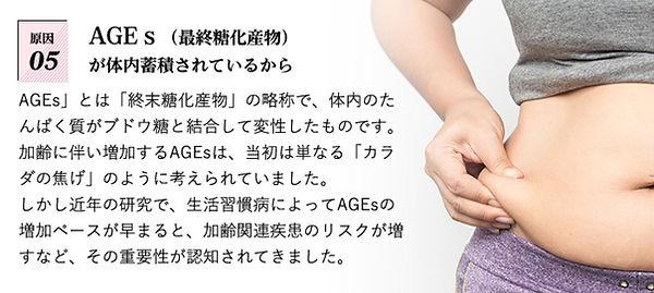 SUMIET原因5.JPG