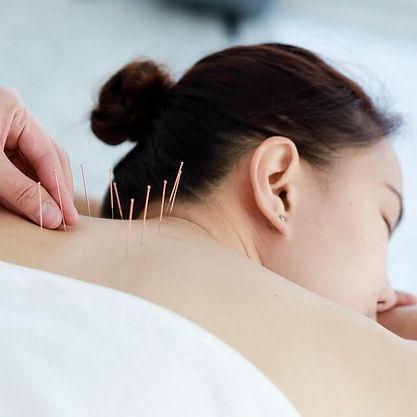 accupuncture-card-e1594663849813.jpg