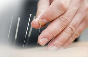 banner-acupuncture_edited.jpg