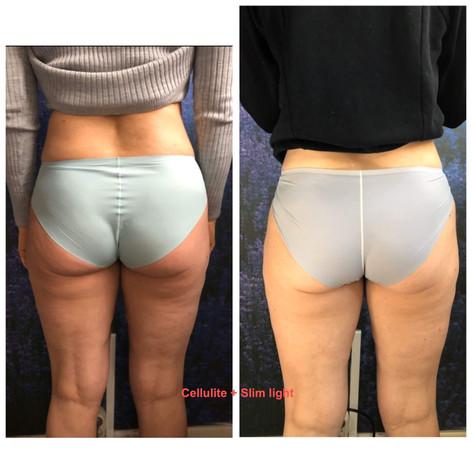 Cellulite + slim light