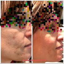 Acne skin problems