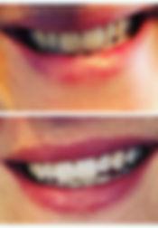 tanden whitening