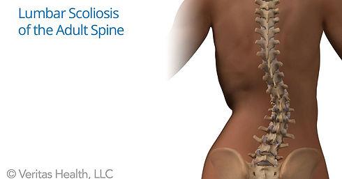 Adult_Spine_figure_lumbar_scoliosis.jpeg