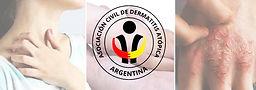 TALLER DE DERMATITIS ATOPICA PARA PACIENTES Y FAMILIARES DE PACIENTES