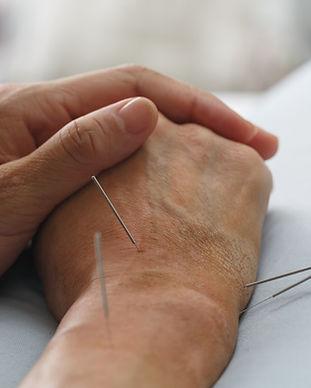 Acupuncture Hand.jpg