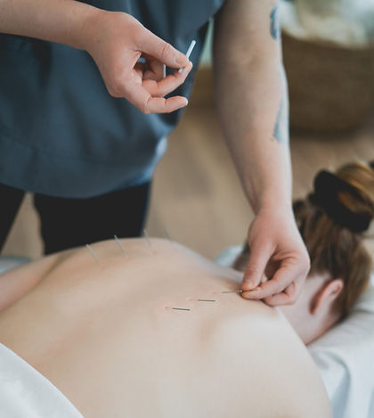 Acupuncture treatment Fourth Meridian
