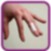 products-upperlimb-finger.jpg