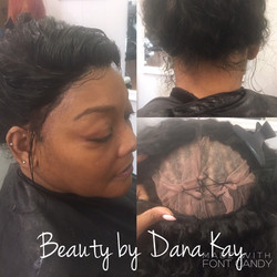 360 Degree Frontal