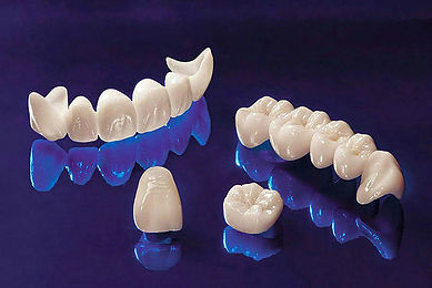 dental-crown02.jpg