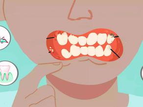 9 probleme orale frecvente și cum pot fi prevenite