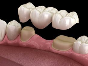 Ce este o punte dentara?