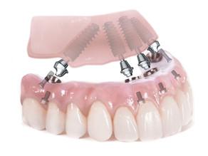 Implanturi si dantura fixa in 24h – SKY Fast & Fixed Bredent!
