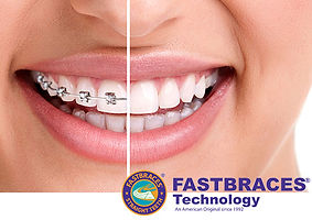 Fastbraces teeth straightening treatment. Braces comparison