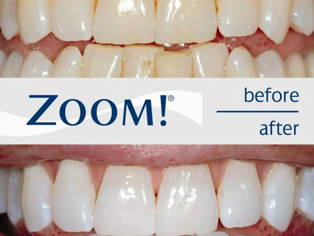 Ever thought about teeth whitening?
