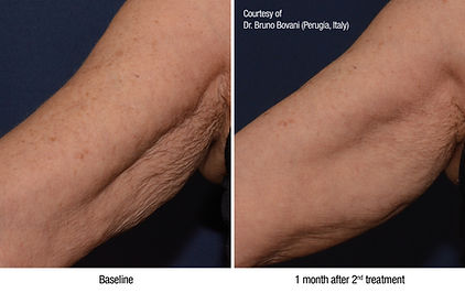 Profhilo before and after images arm area