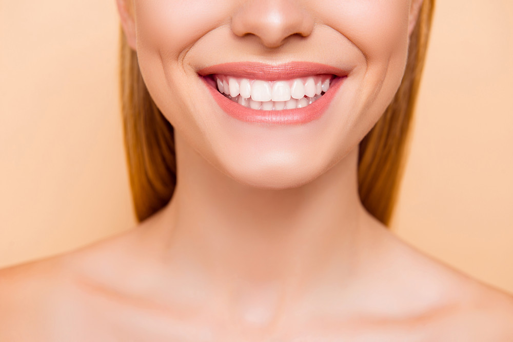 woman smiling with white and straight teeth. Attending regular dental and hygienist appointments