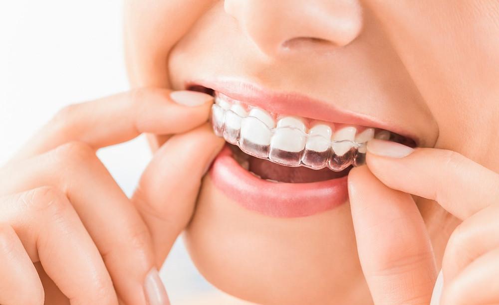 Women placing Invisalign retainer onto teeth