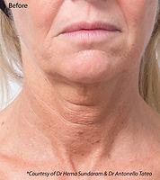 Profhilo before treatment image neck area