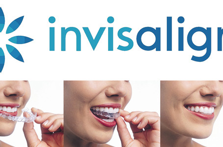 Invisalign Teeth Straightening Technology